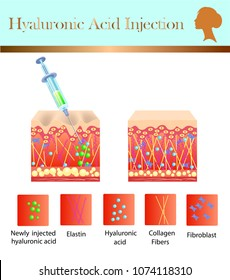hyaluronic acid injection, before and affect , vector illustration