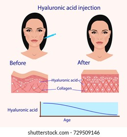 hyaluronic acid injection, before and after , vector illustration, diagram