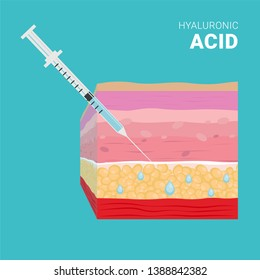 Hyaluronic acid injection. Skin layers, dermis, epidermis, horny layer, basal layer. Skin lifting and wrinkle removal with injections
