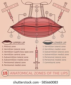 Hyaluronic acid lip injections scheme. Vector illustration with detailed anatomical zones infographic in pink and brown colours. Medical, cosmetological and anti-aging concept.