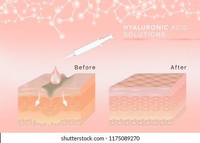 Hyaluronic acid skin solutions ad, pink collagen serum drop with cosmetic advertising background ready to use, syringe in 3d illustration.