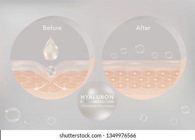 Hyaluronic acid skin solutions ad, white collagen serum drop with cosmetic advertising background ready to use. illustration vector.