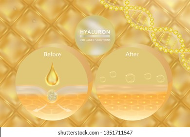 Hyaluronic acid skin solutions ad, gold collagen serum drop with cosmetic advertising background ready to use. illustration vector.