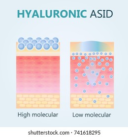 Hyaluronic acid. Hyaluronic acid in skin-care products. Low molecular and High molecular.