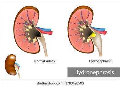 Hydronephrosis. Hydrostatic dilation of the renal pelvis and calyces