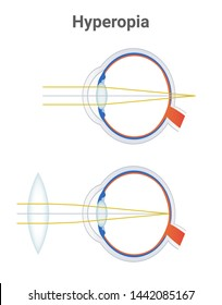 Hyperopia, far sightedness eye disorder and corrected eye by a plus lens or biconvex positive lens. The light is focused behind the retina. Illustration is isolated on white background.