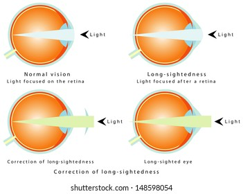Hyperopia. Normal vision, light focused on the retina. Long-sightedness, light focused after a retina. Correction of long-sightedness. Long - sighted eye.