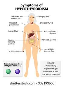 Hyperthyroidism or hyperthyreosis. Signs and Symptoms thyroid dysfunction