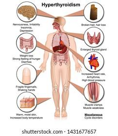 hyperthyroidism medical vector illustration isolated on white background  infographic eps 10