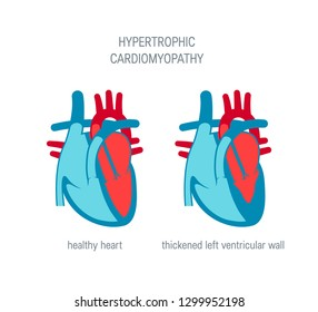 Hypertrophic cardiomyopathy disease concept. Vector illustration for articles, educational textbooks etc. in flat style