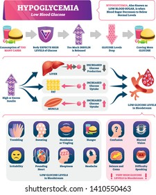 Hypoglycemia vector illustration. Labeled low sugar level medical scheme. Chronic diabetes from high carbs consumption and obesity. Excess bloodstream insulin educational symptoms and causes scheme.