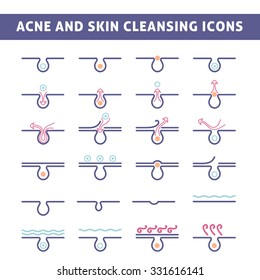 icon acne, schematic view of a derma care, problem skin with pimple in section