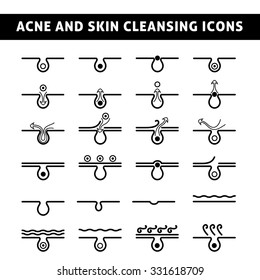 icon acne, schematic view of a skin care, problem skin with acne in section, black and white image
