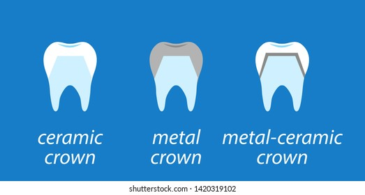 Icons dental on blue background. Service installation of a ceramic crown. As well as a metal and crown on the tooth. Set icons flat style.