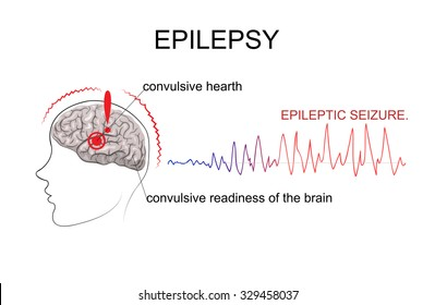 ILLUSTRATED TWO MAIN FACTORS NECESSARY FOR THE OCCURRENCE OF A SEIZURE. THE CENTER OF EXCITEMENT AND GENERAL CONVULSIVE READINESS OF THE BRAIN.