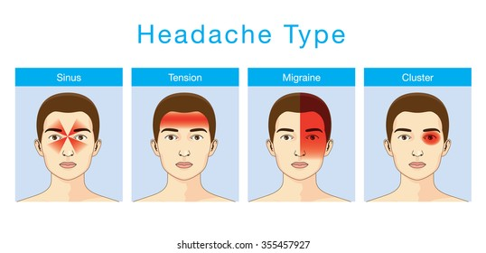 Illustration about headaches 4 type on different area of patient head.
