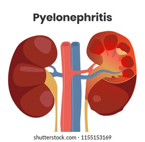 Illustration of the accute pyelonephritis with the pus inside the kidney and severe inflammation. Normal kidney is on the left with the affected kidney on the right