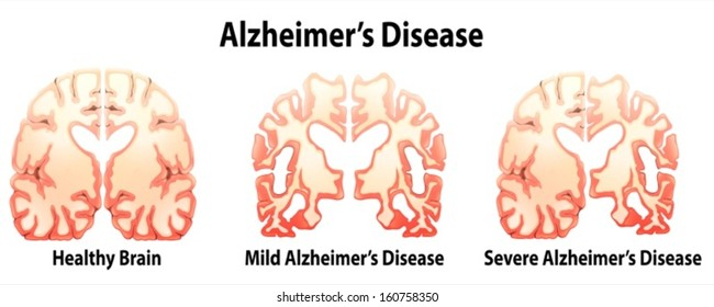 Illustration of the alzheimer's Disease on a white background