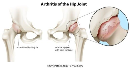 Illustration of the arthritis of the hip joint on a white background