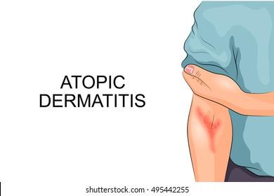 illustration of atopic dermatitis. allergies. dermatology. inflammation