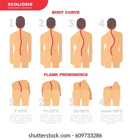 Illustration of the back with scoliosis 4 degrees vector flat design. Scoliosis infographic elements. Back curves and visual assessment scale of scoliosis and violation of posture, stock vector