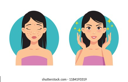 Illustration before and after facial acne treatment from a beautiful girl.