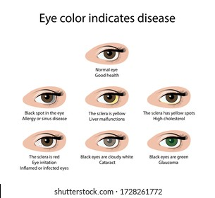 illustration of biology and medical, Eye color indicates disease, Various diseases, The color of the eyes can tell various diseases