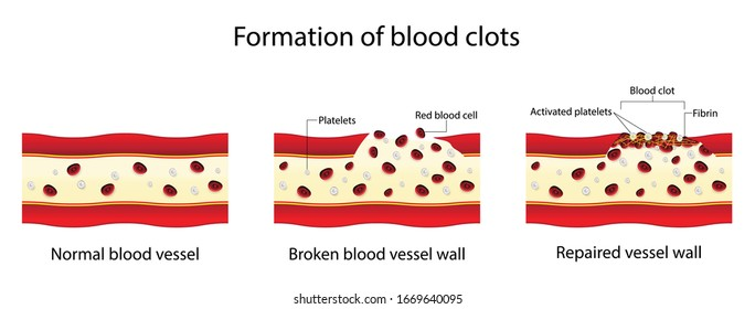 illustration of biology and medical, Formation of blood clots, Coagulation is the process by which blood changes from a liquid to a gel, forming a blood clot, hemostasis, Fomation of blood clots
