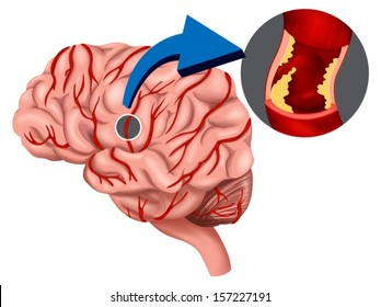 Illustration of a Blood Clot concept in the brain on a white background