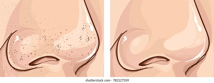 illustration of clogged pores and clean pores on nose