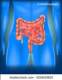 Illustration of Colonoscopy  in the colon. Anatomy of the Large Intestine
