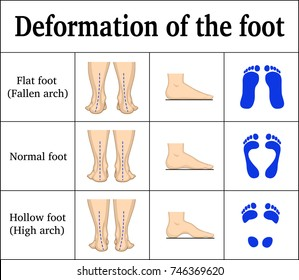 Illustration of the deformation of the foot - flat feet and a hollow foot. There are footprints, the form of the foot on the side and behind