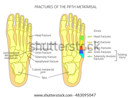 Illustration Diagram 5th Metatarsal Fractures Types Stock Vector