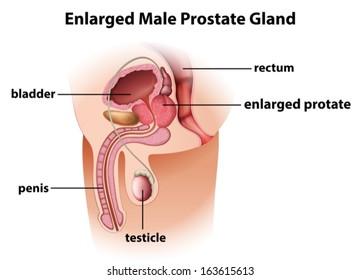 el menú ampliado de lucca de próstata
