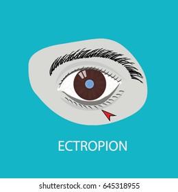 Illustration of the eye disease. ectropion