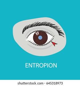 Illustration of the eye disease. entropion