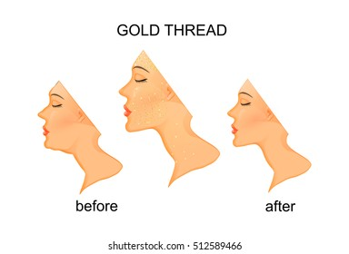 illustration of facial rejuvenation and neck with gold thread.before and after