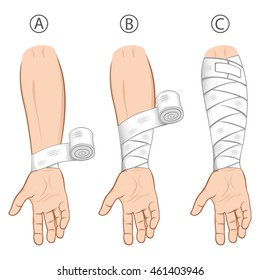 Illustration first aid forearm caucasian, educational simple dressing. Ideal for medical catalogs, informational and institutional material