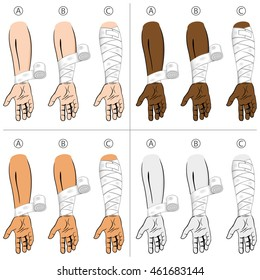 Illustration first aid forearm ethnic, educational simple dressing. Ideal for medical catalogs, informational and institutional material