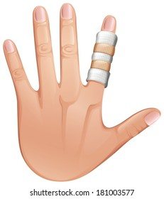 Illustration of a first aid treatment on a finger on a white background