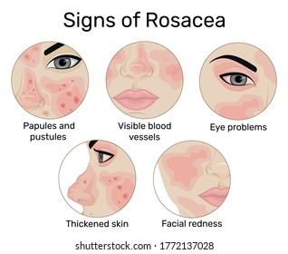 An illustration of the five signs of rosacea such as redness of the skin, papules and pustules, visible blood vessels, thickening of the skin, and eye problems
