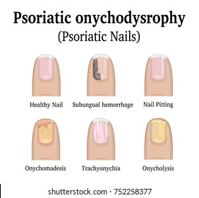 Illustration of five types of nail psoriasis, such as nail pitting, subungual hemorrhage, onychomadesis, trachyonychia and onycholysis