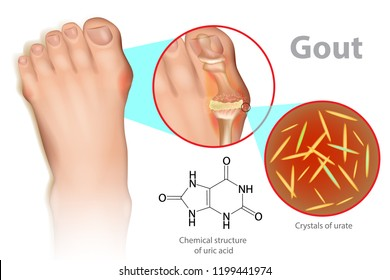 Illustration of foot with gout. Gout is a form of inflammatory arthritis is due to persistently elevated levels of uric acid in the blood.