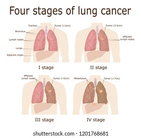 Illustration of the four stages of oncological disease - lung cancer