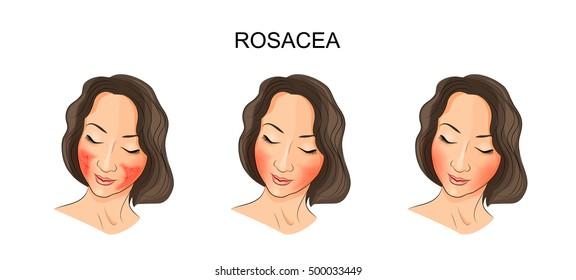 illustration of girl's face,  damaged rosacea. dermatology