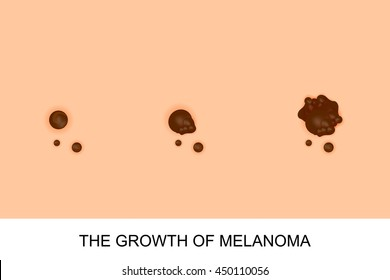 illustration of the growth of melanoma