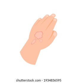 illustration of a hand affected by scurvy, ringworm, or skin disease. eczema symptoms. flat style. vector design