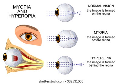 illustration of a healthy eye, the eye, myopia and hyperopia