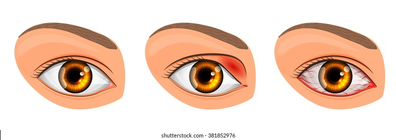 illustration of a healthy eye, the patient with conjunctivitis and styes