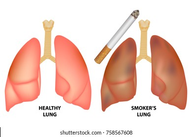 Diagram pulmonary alveolus air sacs lung stock vector royalty free illustration of healthy lungs and lungs of a smoker ccuart Images